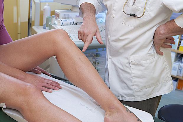 фото ног при начальной стадии варикоза