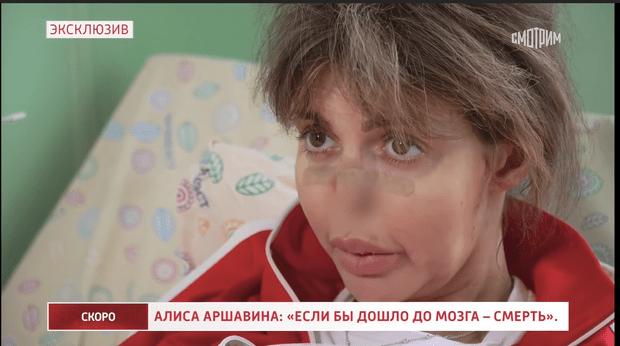 Фото №2 - «Ходить не могу, пролежни воспалились»: состояние Алисы Казьминой ухудшилось