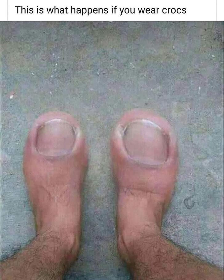 Фото №8 - Пять видов обуви, которую называли уродской, но всё равно массово носили