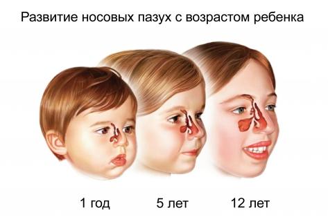 Как лечить гайморит у ребенка