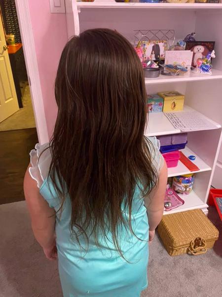 Фото №4 - Девочка едва не лишилась волос из-за популярной игрушки: фото