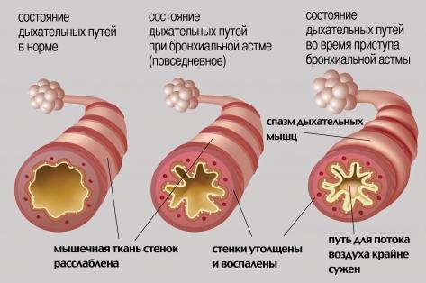 Бронхиальная астма у детей: симптомы