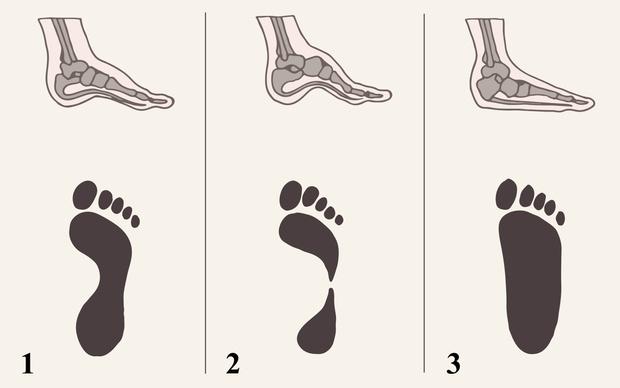 Фото №5 - Первая обувь для малыша: как правильно выбрать «башмачки» на первые шаги?