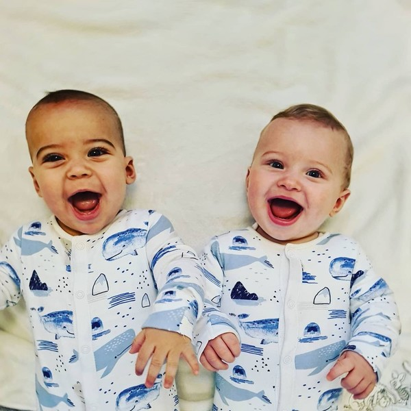 близнецы фото, близнецы разной расы, разные близнецы, близнецы не похожи друг на друга, история из жизни