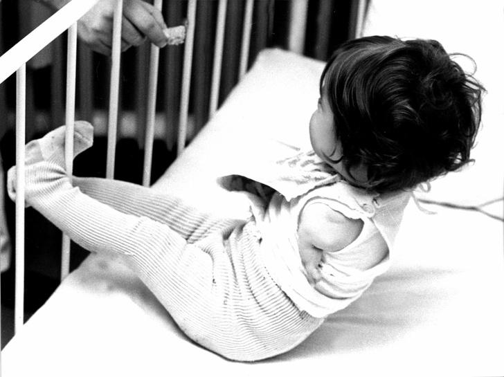 Ребенок-инвалид, талидомид