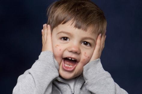 Сыпь у ребенка: причины, лечение