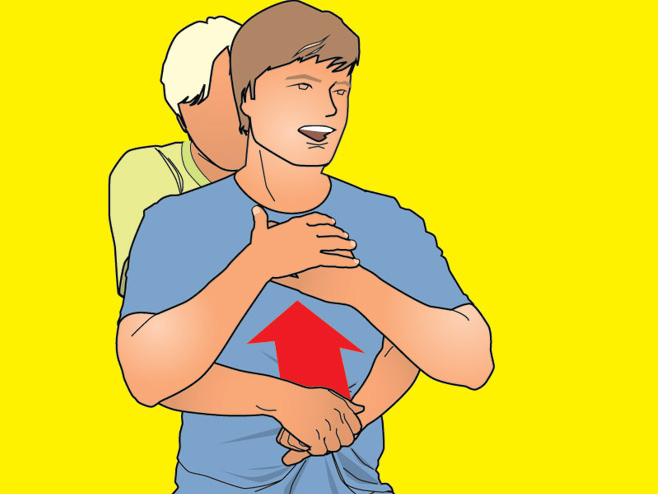 Спасти подавившегося человека