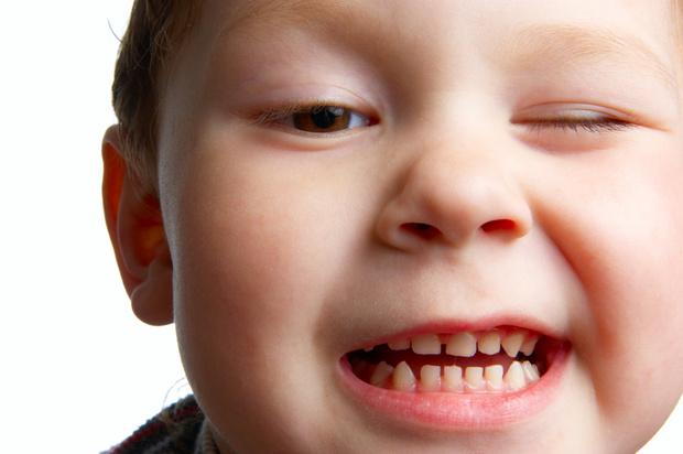 Фото №1 - Молочные зубы
