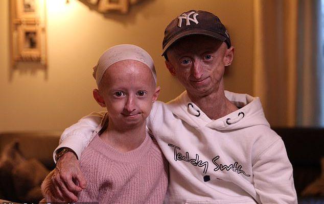 Фото №5 - Родилась бабушкой: как выглядят дети с болезнью Бенджамина Баттона