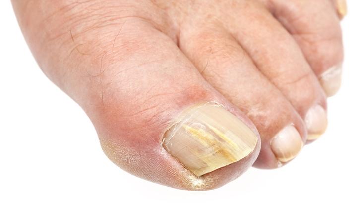 желтые пятна на ногтях
