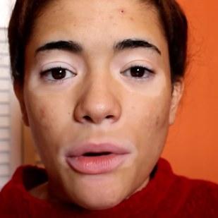 Девушки с витилиго показали преображающую силу макияжа