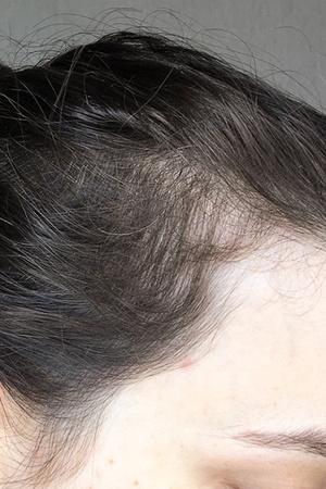 Фото №3 - Профессиональная травма: блогер лишилась волос из-за своей же диеты