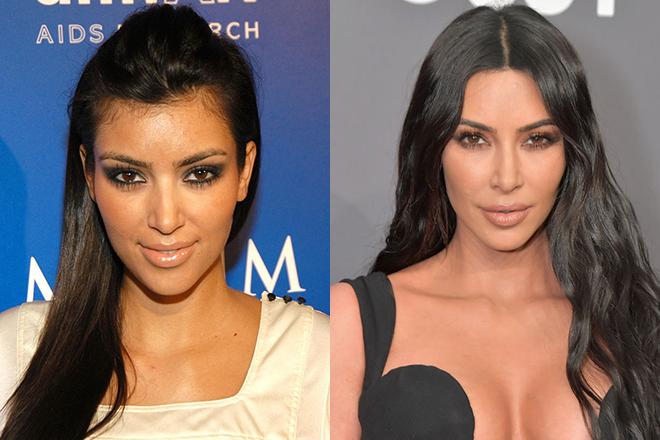 пластические операции звезд до и после