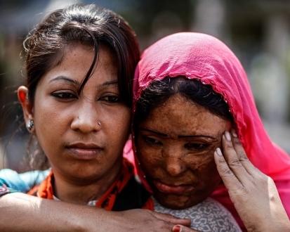 Фото №2 - Жительница Индии до сих пор живет с мужем, который облил ее и их маленьких дочерей кислотой