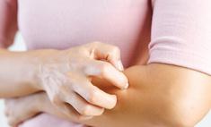 Аллергический зуд: как снять неприятный симптом быстро и эффективно