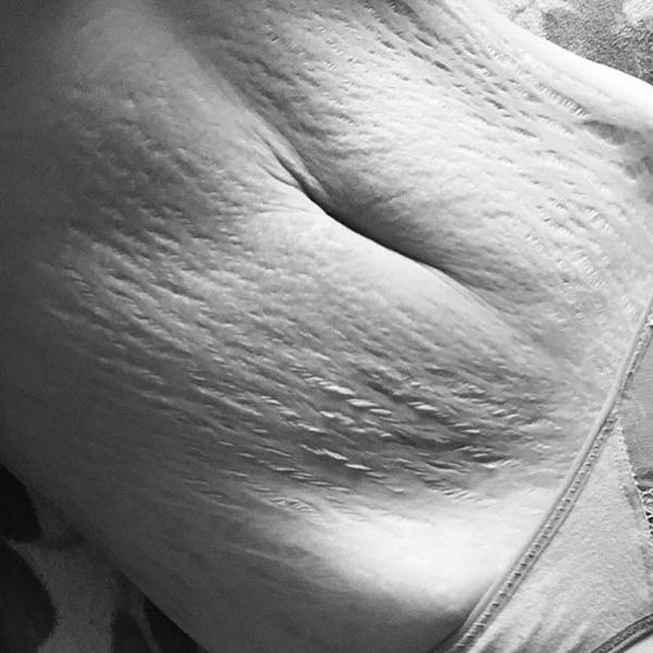 Фото №5 - Шрам – это улыбка: мамы показывают честные фото после родов