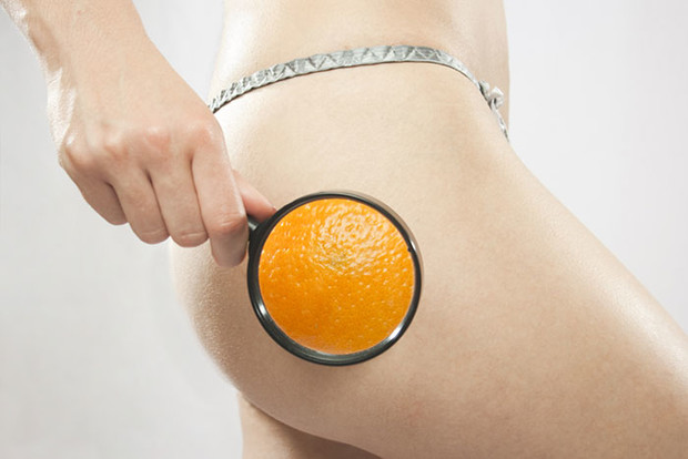 Фото №1 - Какой у вас целлюлит: типы «апельсиновой корки» и борьба с ними