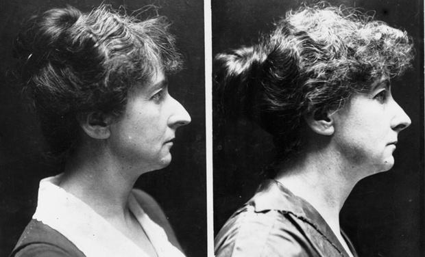 Примеры ринопластики 1920-х годов