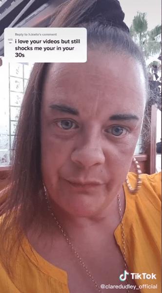 Фото №1 - «Как бабушка»: блогершу травят за то, что в 36 лет выглядит на 60