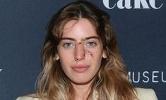 Раны украшают Дочь Юэна Макгрегора вышла в свет со следами на лице от укусов собаки