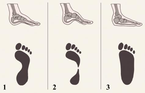 До какого возраста у ребенка формируется стопа