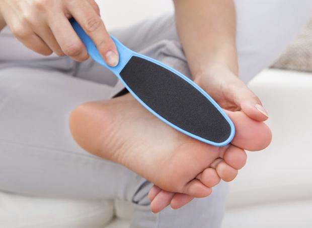 Фото №2 - Натоптыши на ногах: способы лечения и профилактики